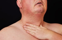 Все признаки рака гортани в одной статье