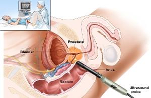 Во время лечения простатита можно заниматься