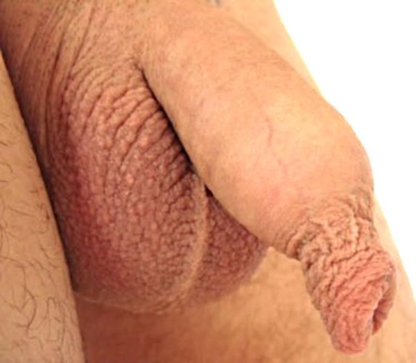 Фимоз у взрослых мужчин фото 55