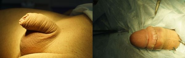 Рубцовый фимоз у взрослых фото 9