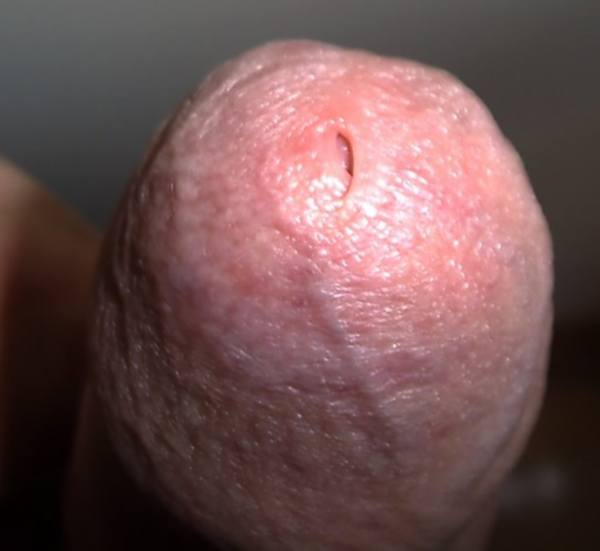 Рубцовый фимоз фото у мужчин 39