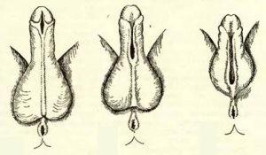 Три вида гипоспадии