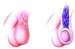 Варикоцелле (статья о причинах)