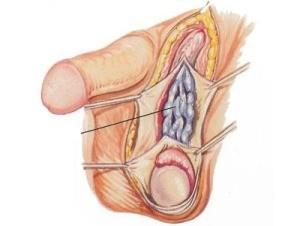 Варикоцеле (статья о последствиях болезни)