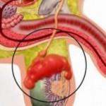 Эпидидимит — когда стоит насторожиться мужчинам