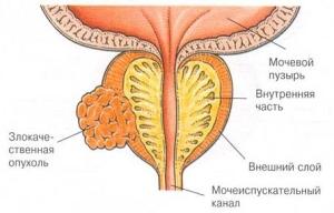 Операция при онкологии предстательной железы
