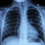 Рентгенография - один из основных методов диагностики рака легких