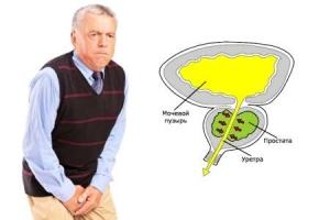 Рак простаты у мужчин: причины образования, первые признаки и методы лечения