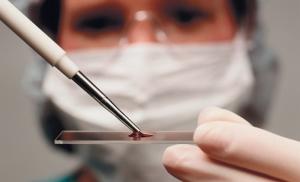 Рак легких 1 стадия: сколько живут, прогноз, лечение