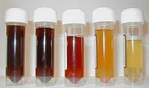Рак мочевого пузыря: симптомы, лечение рака мочевого пузыря, признаки рака мочевого пузыря, прогнозы