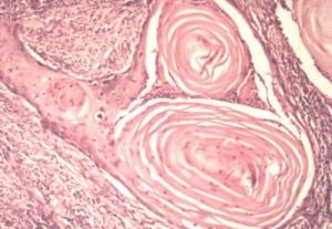 Лечение рака горла – можно ли его вылечить? 2019