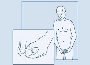 Перекрут гидатиды яичка — что делать при таком диагнозе?